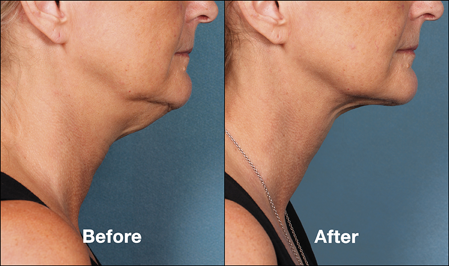 Kybella Patient PRI4 Before After (Side View)